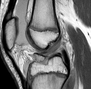 ACL Tibial Avulsion Fracture