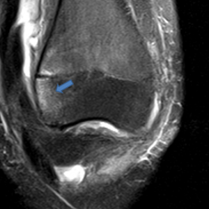 the anterolateral aspect of the lateral femoral condyle