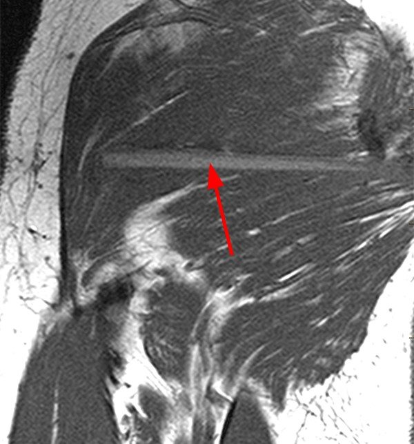 Foreign Body Imaging With Mri