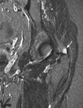 MRI Web Clinic — May 2004