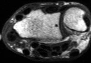 de quervain syndrome radiology
