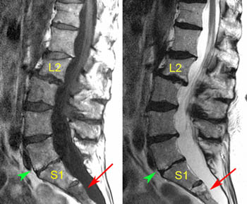 grade 1 retrolisthesis of l2 on l3 The slipped disc once a diagnosis of spondylolisthesis is made, the doctor will  grade the degree of disc slippage and prescribe a specific course of treatment.