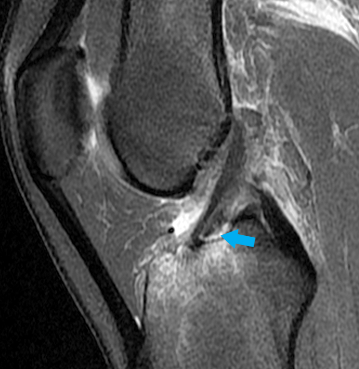 Avulsion of the ACL