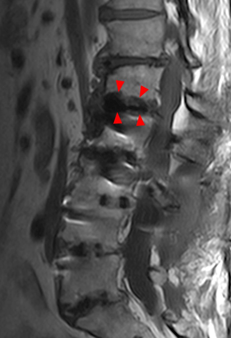 Vertebral Endplate Changes