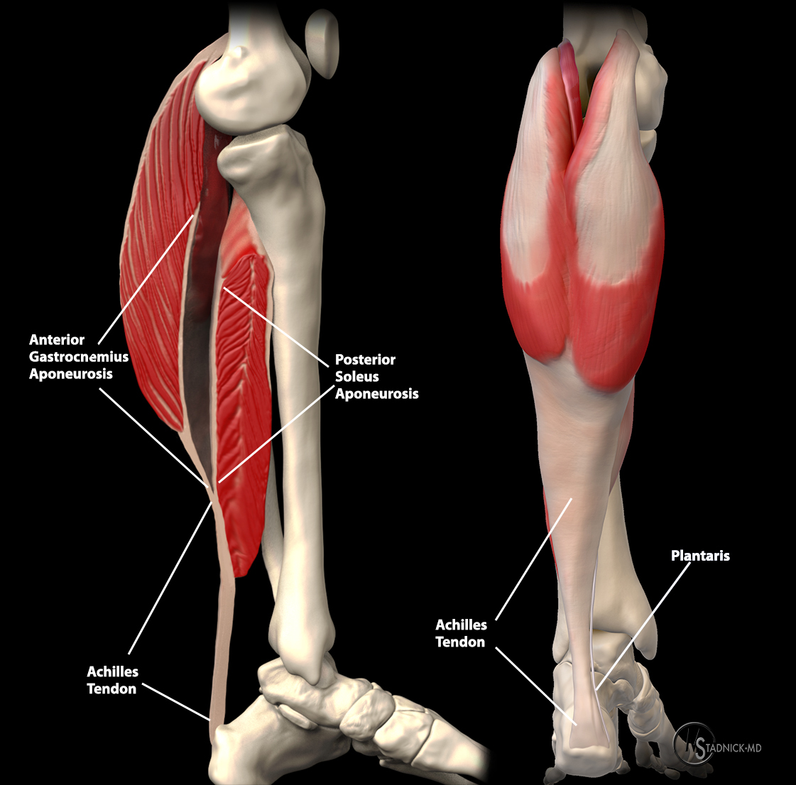 The Achilles tendon forms from the aponeuroses of the gastrocnemius and soleus muscles. The plantaris tendon extends to the medial surface just proximal to the level of fusion and extends distally to its insertion.