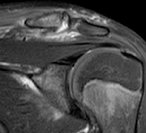 artroza de gradul II tratamentul articulațiilor șoldului preparate pentru osteochondroza regiunii toracice